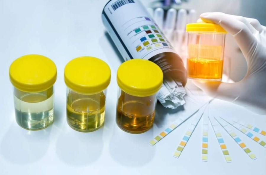 Chỉ số glucose trong xét nghiệm nước tiểu