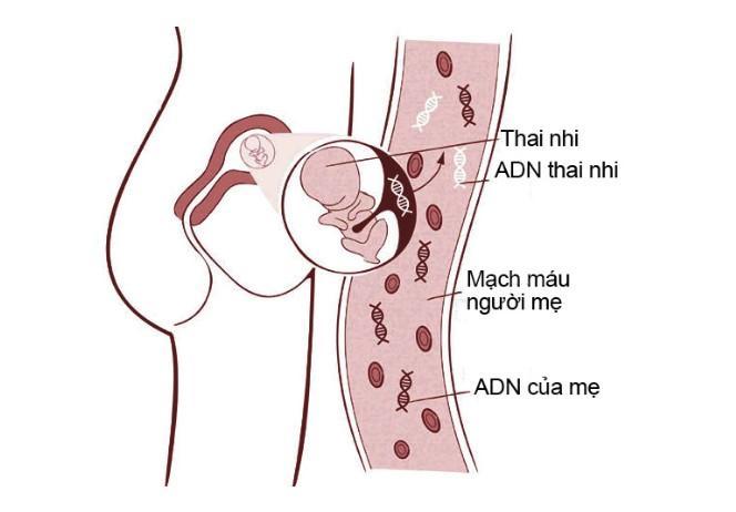 Double test nguy cơ cao, mẹ bầu có cần làm NIPT không?