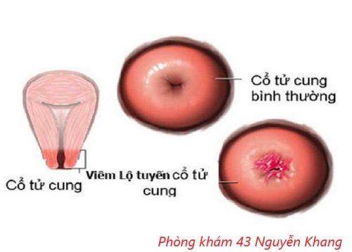 Viêm lộ tuyến khi mang thai có sinh thường được không?