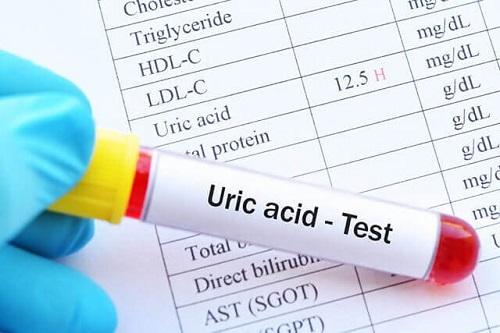 Nguyên nhân và triệu chứng của Acid uric máu tăng