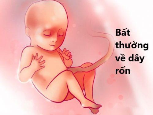 5 bất thường về dây rốn trong thai kỳ mẹ bầu cần biết