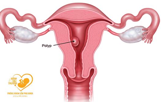 Nguyên nhân và yếu tố gây polyp tử cung và cách điều trị