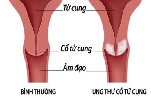 Ung thư cổ tử cung là gì? có phòng tránh được không?