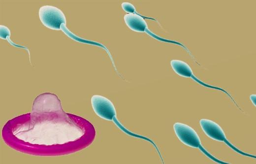 Ưu nhược điểm của sự kết hợp bao cao su và chất diệt tinh trùng