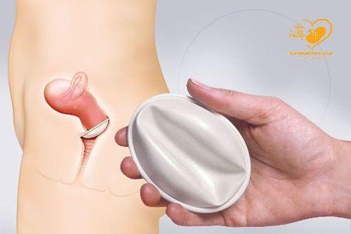 Những điều cần lưu ý khi sử dụng màng ngăn âm đạo