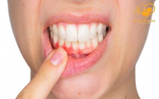 Những nguy cơ có thể gặp phải nếu mắc bệnh răng miệng khi mang thai