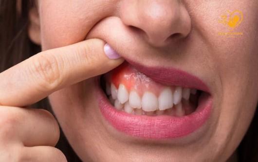 Những vấn đề răng miệng thường gặp ở phụ nữ mang thai