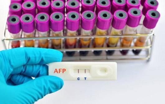 Xét nghiệm AFP (Alpha fetoprotein) và thai nghén