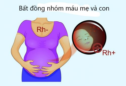 Mẹ mang nhóm máu Rh(-) âm cần lưu ý gì ?