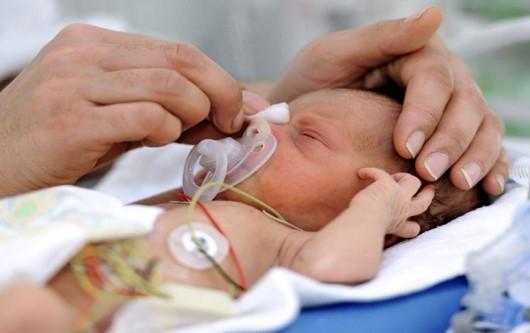 Bệnh màng trong ở trẻ sơ sinh là gì?